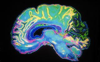 Principala cauză care duce la demență a fost descoperită