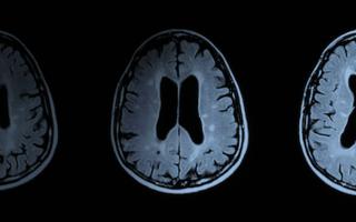 Un nou medicament pentru scleroza multiplă a fost aprobat în UE