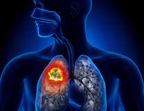 Studiu. Pacienții cu cancer pulmonar trăiesc mai mult dacă sunt tratați cu imunoterapie