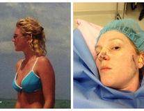 Povestea unei femei diagnosticate cu cancer de piele. Are 42 de ani și 86 de operații