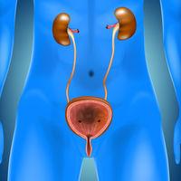 Principalele 4 simptome ale cancerului de vezică urinară