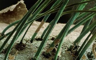 Iată cum se văd lucrurile obişnuite la microscop. Este impresionant!