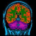 Cum creează creierul conștiința