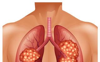 Simptomele cancerului pulmonar (altele decât tusea)