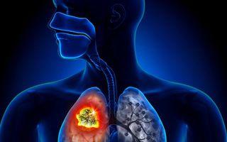 75% dintre românii diagnosticați cu o formă de cancer pulmonar ajung la medic în stadiu inoperabil