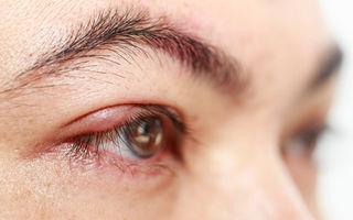 Blefarita - 10 simptome care te trimit la oftalmolog