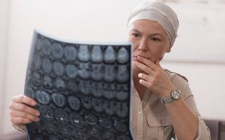 """""""Explozie"""" de cancer în toată lumea: Extinderea bolii este alarmantă"""