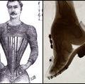 10 lucruri periculoase pe care oamenii le făceau în trecut pentru frumuseţe şi modă. Te îngrozesc!