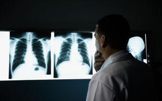 Cum poți face cancer la plămâni la 31 de ani, fără să fumezi o țigară
