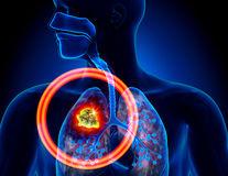Cele mai răspândite tipuri de cancer din România. O nouă statistică îngrijorătoare