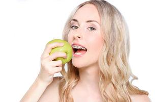 Porți aparat dentar?  Evită alimentele care-ți pun în pericol zâmbetul
