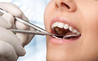 Ce să mănânci după o operație dentară: 7 idei