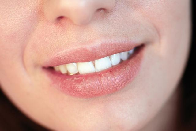 De ce îți apar crăpături în colțurile gurii și cum le poți trata