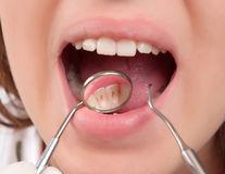 Îți sângerează gingiile? 5 remedii naturale
