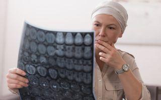 Simptomele cancerului. Nu ignora aceste semnale de alarmă