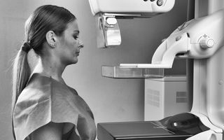 Româncele sunt diagnosticate cu cancer de sân în fază avansată, spre deosebire de femeile din restul Europei