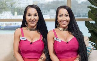Ce au pățit două gemene după ce au cheltuit 250.000 de dolari pe operații estetice ca să semene și mai mult între ele
