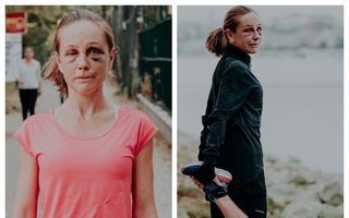 """Campioană la ultramaraton, agresată sexual în Budapesta. Refuză să-și ascundă vânătăile și are un mesaj direct: """"Fugi!"""""""