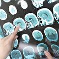 Creierul încă funcționează după ce se oprește inima. Studiu