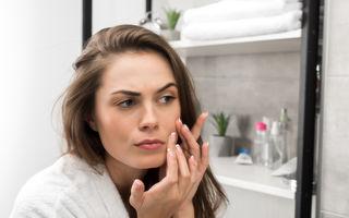 5 semne că te confrunți cu acnee de cauză hormonală