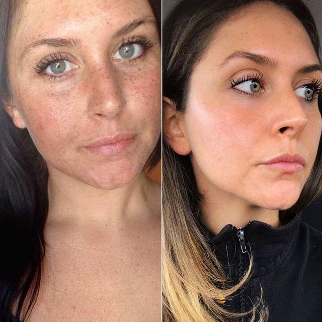 """Efectele șocante pe care le are soarele asupra pielii. Imaginea """"înainte și după"""" care a devenit virală"""