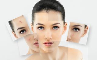 4 ingrediente care tratează acneea și previn ridurile în același timp