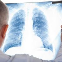 Primele simptome ale cancerului de plamani