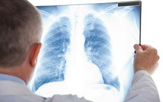 Primele simptome ale cancerului de plămâni
