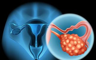Ce ar trebui să știi despre cancerul ovarian