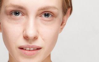 Tratamente naturale pentru cearcăne și cercurile negre de sub ochi