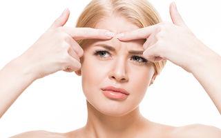 Cum tratezi acneea când temperaturile sunt scăzute? 5 soluții