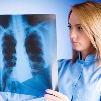 Cat de periculoasa este radiografia in timpul sarcinii?