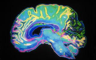 Care este sursa fizică a anxietății din creier
