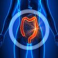Colonul iritabil: cauze și regim alimentar recomandat