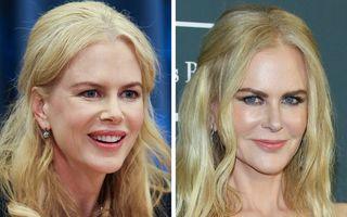 Frumusețe pe muchie de cuțit: 17 femei celebre care și-au făcut operații estetice, dar nu se feresc să vorbească despre asta