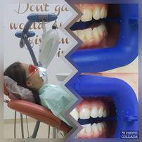 Albirea dentara - una dintre cele mai solicitate proceduri stomatologice