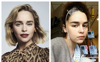 """Emilia Clarke, imagini de pe patul de spital, după primul anevrism: """"Le-am cerut doctorilor să mă lase să mor"""""""