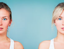 Persoanele care suferă de rozacee sunt predispuse la Alzheimer