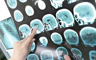 Corelația dintre depresie și accidentele vasculare cerebrale
