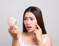 5 remedii naturale care tratează cicatricile provocate de acnee