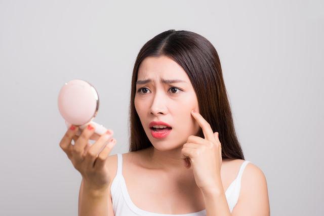 Remedii naturale care tratează cicatricile provocate de acnee