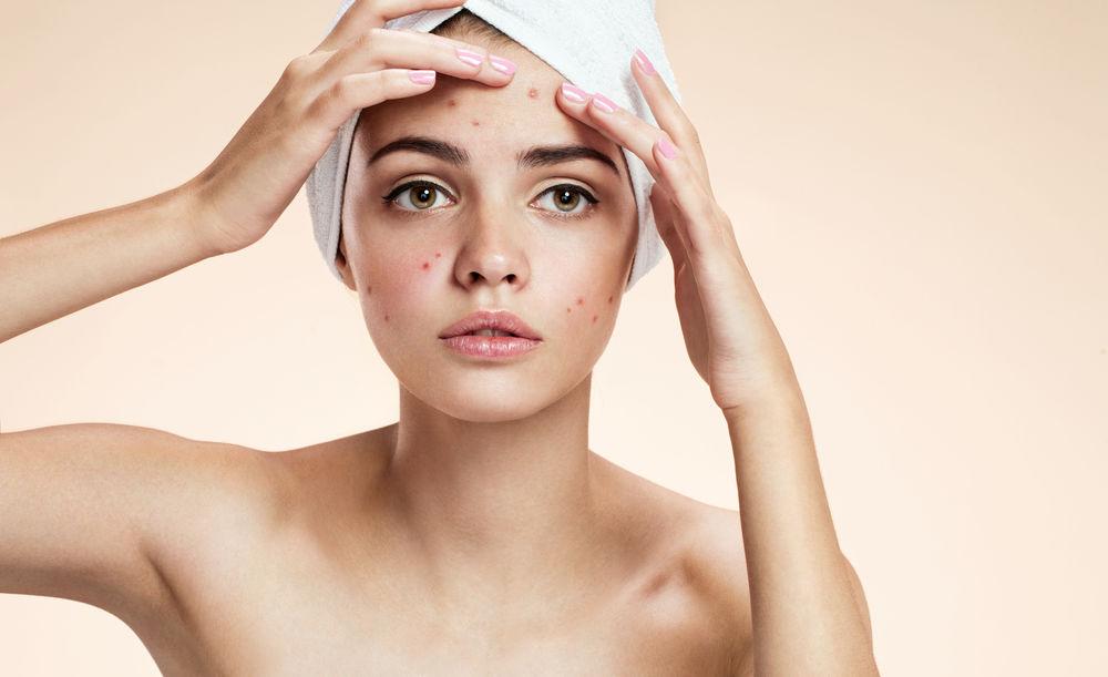 Studiu. Oamenii care suferă de acnee îmbătrânesc mai greu