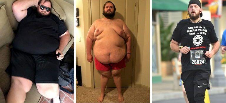 Pierzi în greutate din perioadă - Obezul morbid pierde în greutate