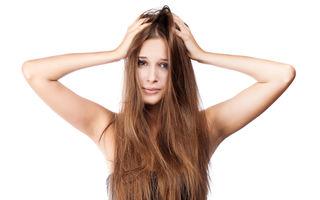 7 mituri despre dermatita seboreică