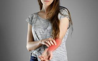 Ce alimente agravează eczema?