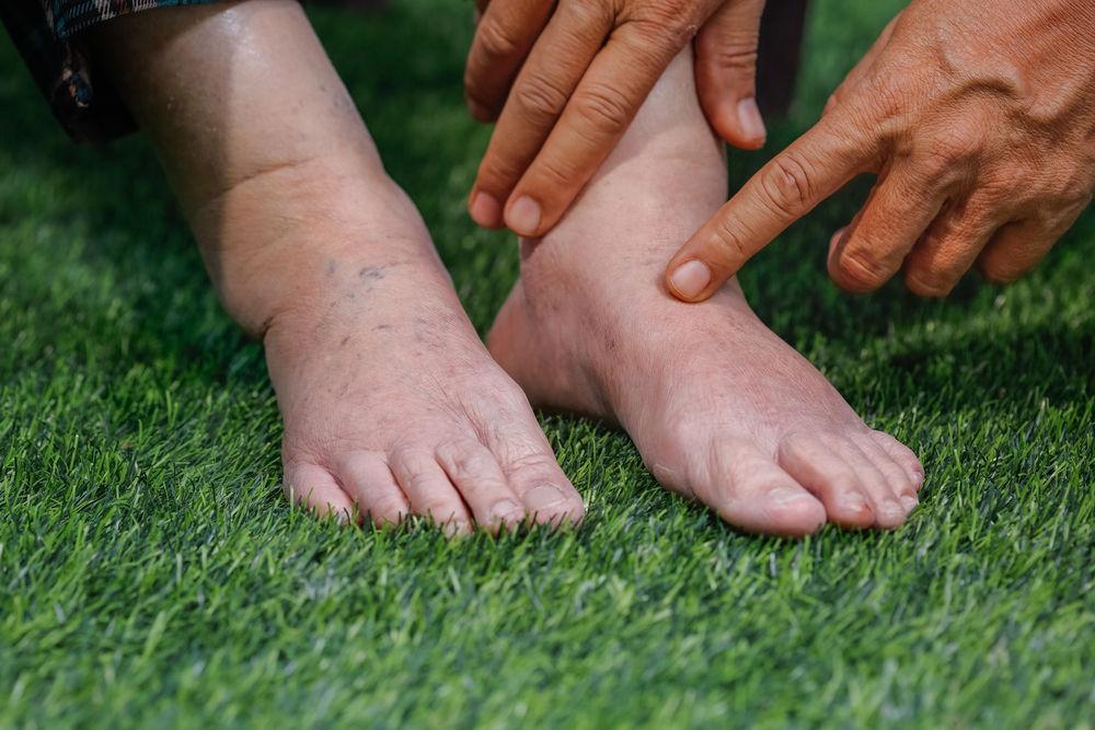 ce să faci pe picioarele umflate