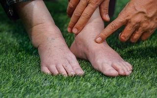 Ai picioarele umflate? 6 cauze