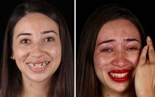 Cât contează dantura pentru aspectul fizic: 30 de oameni săraci cărora un dentist le-a schimbat viața