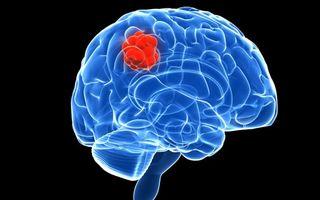 Semne care te ajută să descoperi tumorile cerebrale înainte de a fi prea târziu și să nu amâni vizita la medic