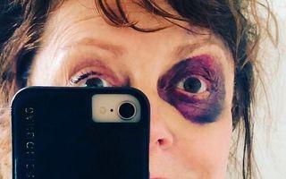 Susan Sarandon, selfie cu un ochi învinețit: Vedeta a povestit ce a pățit
